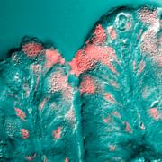 Células mucosas